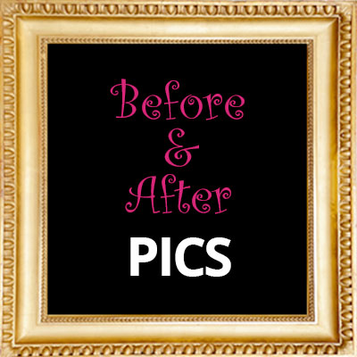 Before & After Pics